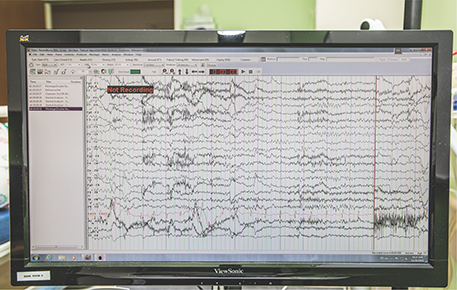 An EEG recording obtained during a clinical trial.