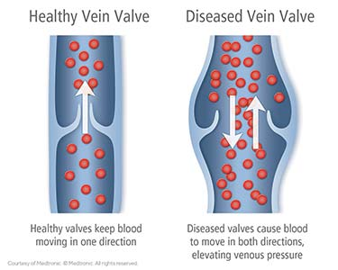 Compressed vein illustration