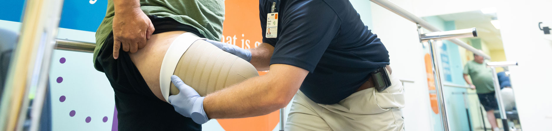 A prosthetic specialist holding a socket for a leg prosthetic on a patient's leg.