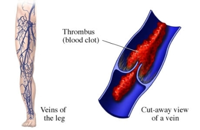 diagram of blood clot in veins of the leg