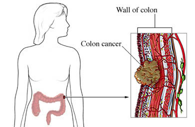 diagram of cancer in wall of colon