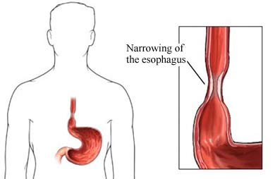 dysphagia narrowing of the esophagus