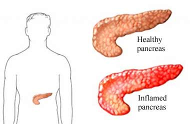 healthy pancreas compared to inflamed pancreas