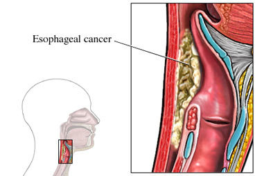 Side view cutaway of the esophagus showing an area of esophageal cancer.
