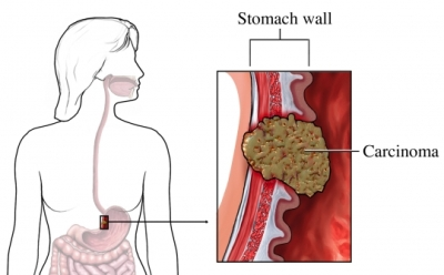 carcinoma in stomach wall
