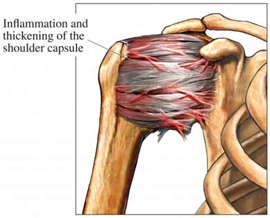 inflammaton of the shoulder