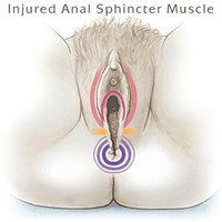injured anal sphincter muscle