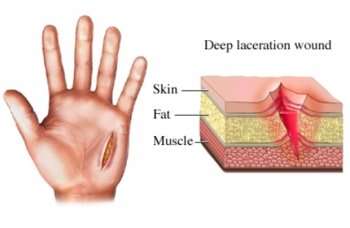 laceration wound on the hand