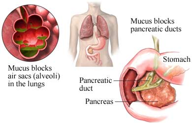 mucus blocks in the lungs