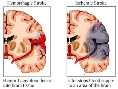 diagram of ischemic stroke in the brain