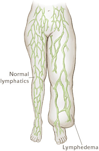 lymphedema compared to normal lymphatics