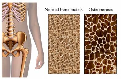 normal bone compared to osteoporosis